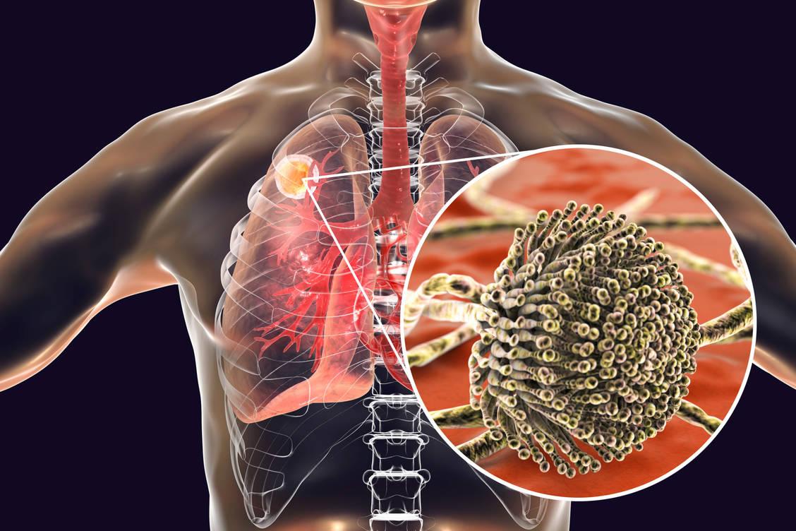 Superinfektion-Gef-hrliche-Pilzinfektion-bei-Covid-19-Patienten-m-glich