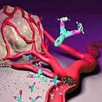 FDA widerruft Avastin-Indikation bei Brustkrebs