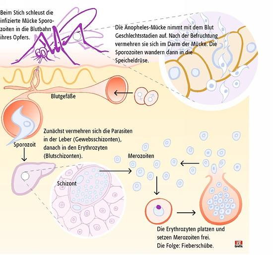 Bei den Parasiten die Kephalgie der Schwindel