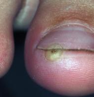 Das Präparat von den Parasiten für den Menschen die 1 Tablette