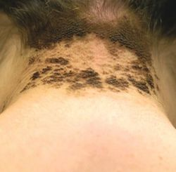 Pigmentstörungen Helle Flecken Und Dunkle Knoten Pharmazeutische