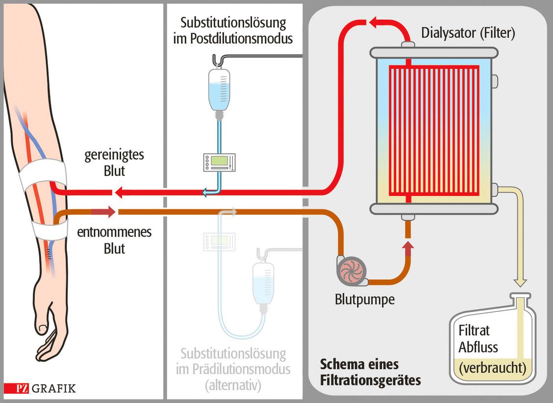 Nierenersatzverfahren Komplexe Medikation Bei