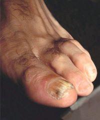 Der an trockene eichel haut Balanitis: Entzündung