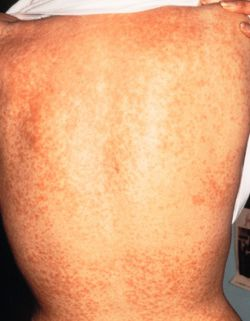 Ausschlag dauer hiv Hautausschlag als