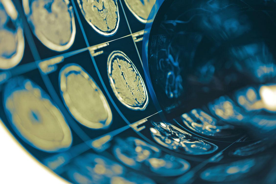 Das Fibromyalgie-Syndrom gibt Ärzten noch viele Rätsel auf. Eines davon ist nun möglicherweise gelöst: Forscher fanden bei Patienten eine ausgeprägte Neuroinflammation im Gehirn, die mit der Schwere einzelner Symptome korrelierte. Foto: Shutterstock/sfam_photo