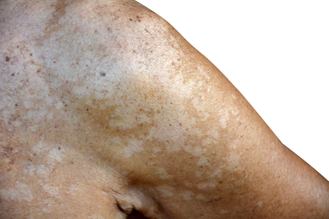 Haut punkte auf der kleine weiße Blasen, Flecken,