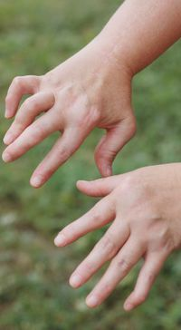 Symptome und Ursachen von rheumatoider Arthritis