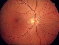 Diabetische Folgeschäden Gefahr Für Das Augenlicht