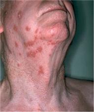 Frau intimbereich herpes im Hautausschlag im