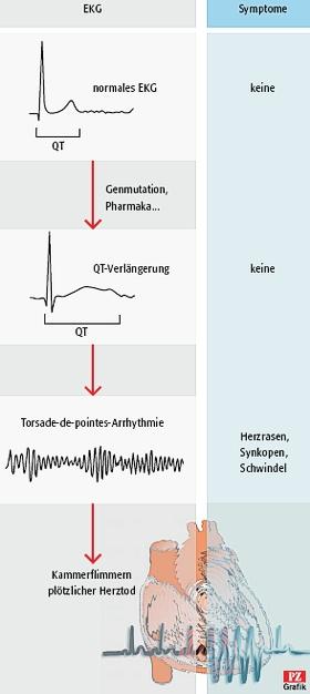 Long Qt Syndrom Wenn Das Herz Aus Dem Takt Gerat Pharmazeutische