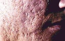 Narben Im Gesicht Durch Pickel