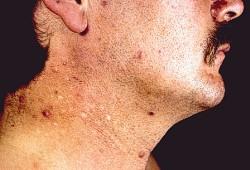 Nachher bpo akne vorher Spironolacton löscht
