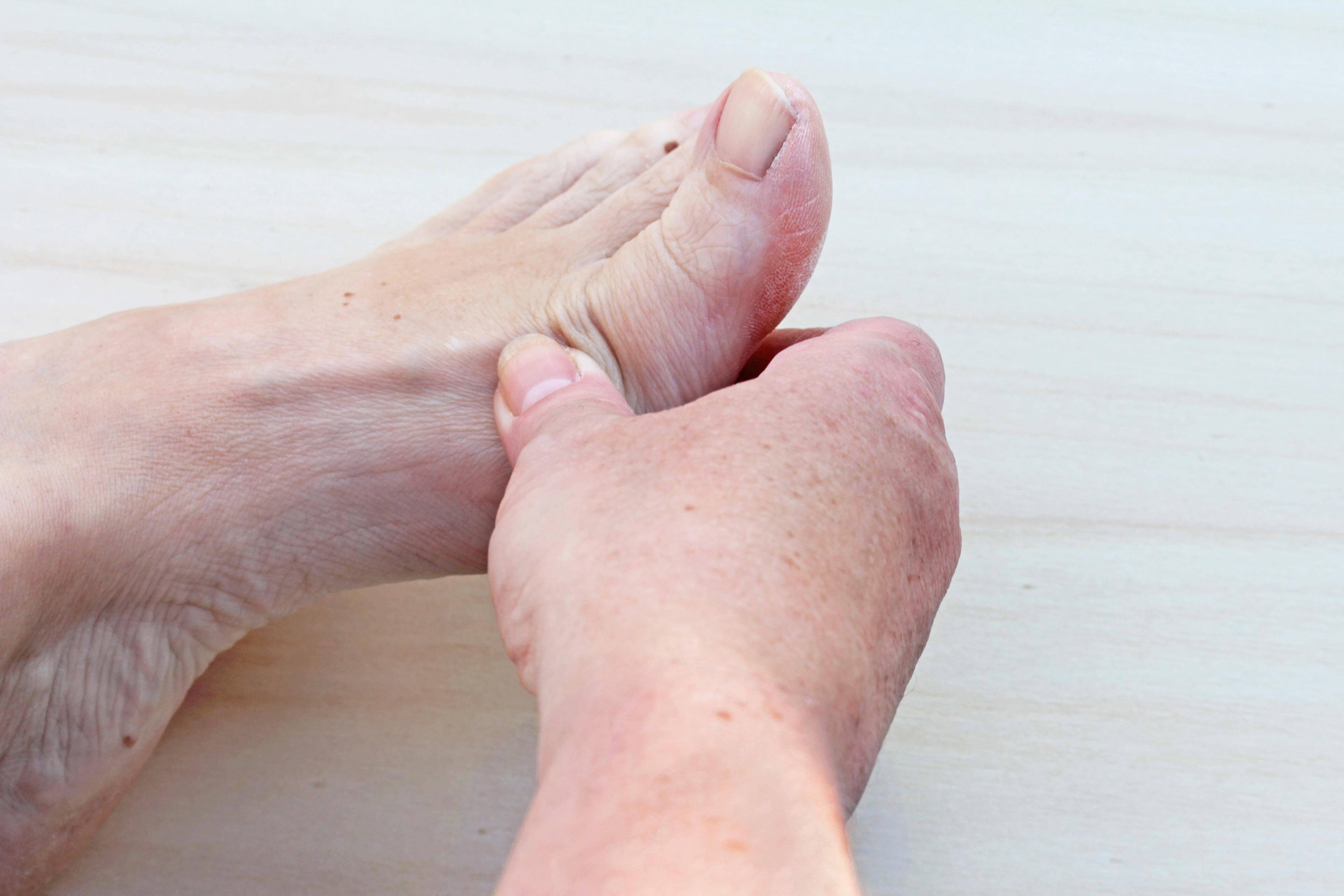 Entzündung zeh Nagelbettentzündung: Symptome